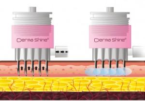 Dermashine injection