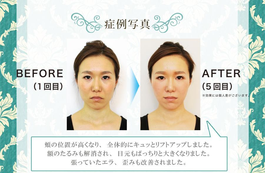若返り小顔矯正の施術例。頬の位置が高くなり、全体的にキュッとリフトアップしました。額のたるみも解消され、目元もぱっちりと大きくなりました。張っていたエラ、歪みも改善されました。
