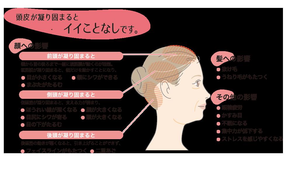 頭筋膜リフト_06
